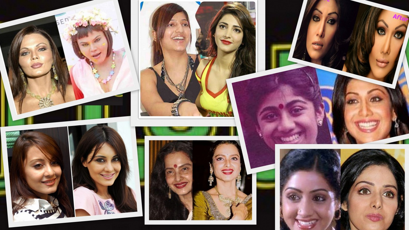 Beautiful Bollywood Stars With Ugly Nose