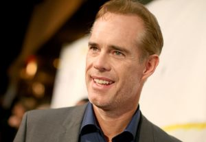 Hair Plug Addiction, Joe Buck, Hair Transplant